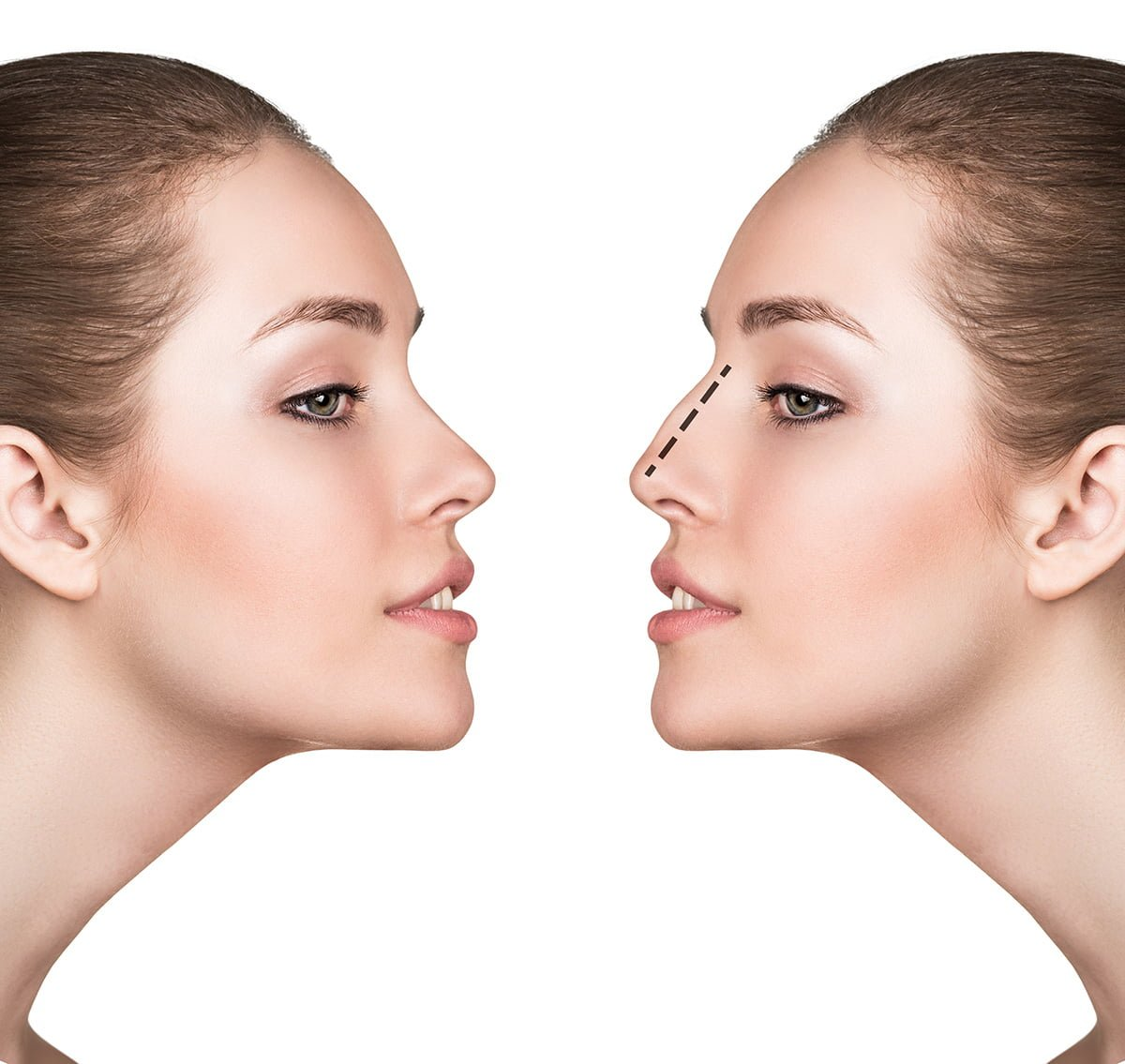 Non-surgical Nose job Edmonton