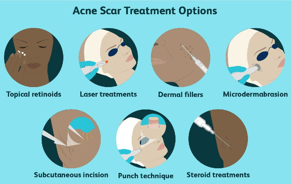 acne treatment in Edmonton