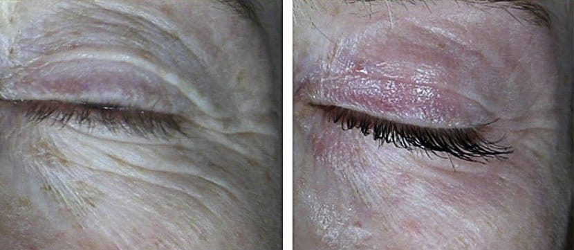 Laser for eye wrinkles