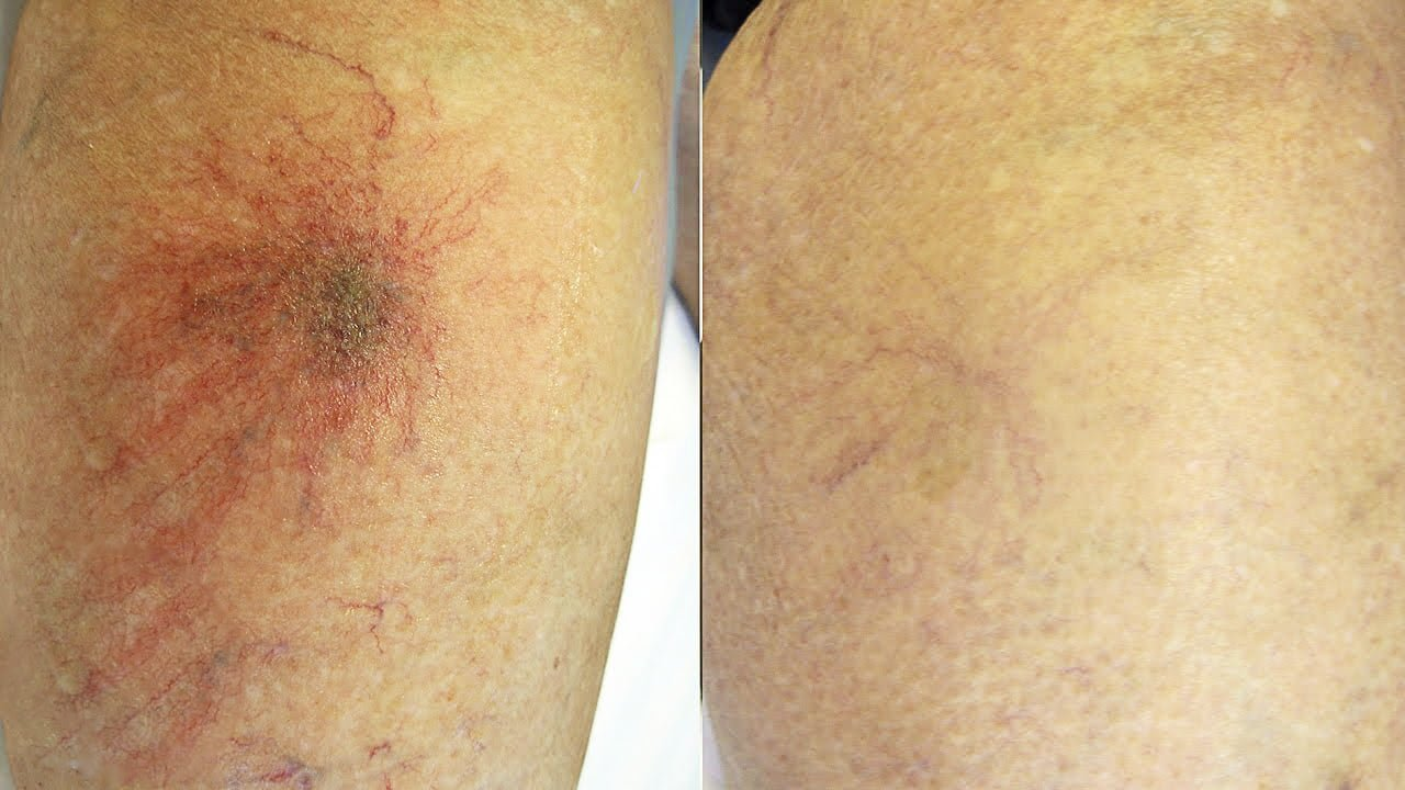 veins laser treatment