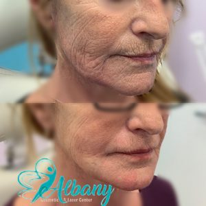 mini facelift with threads and fillers