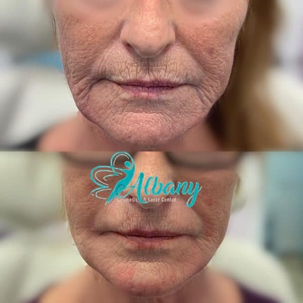 skin tightening with threads and fillers