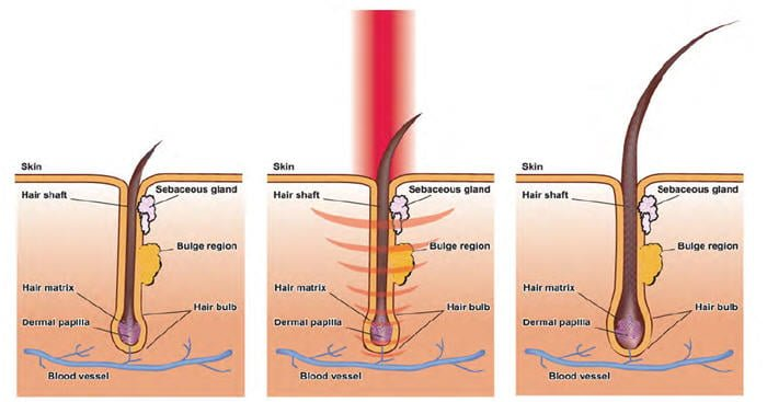 Laser hair loss treatment in Edmonton