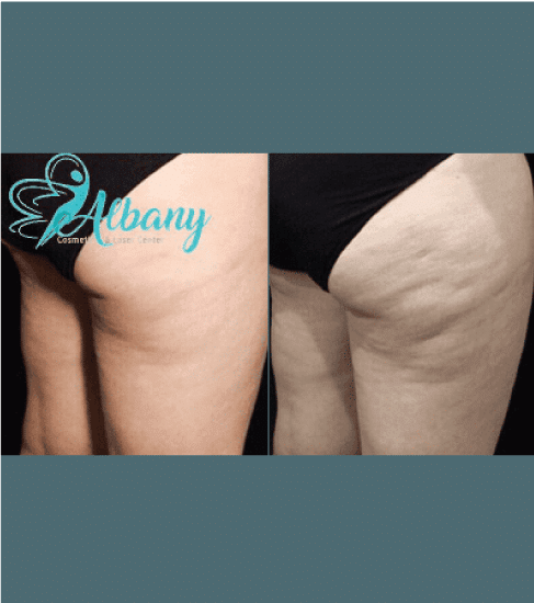 before and after cellulite treatment in Edmonton