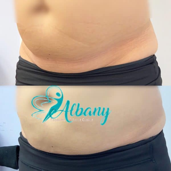 Coolsculpting in Edmonton