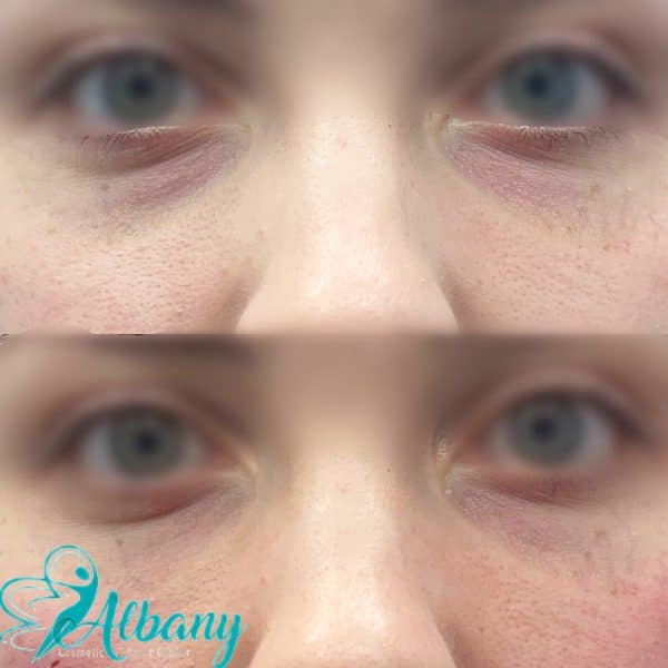 under eyes fillers in Edmonton