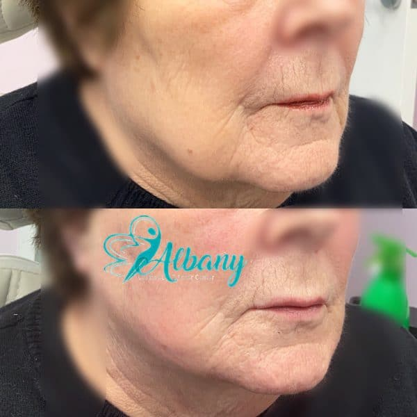 mini facelift with fillers and threads