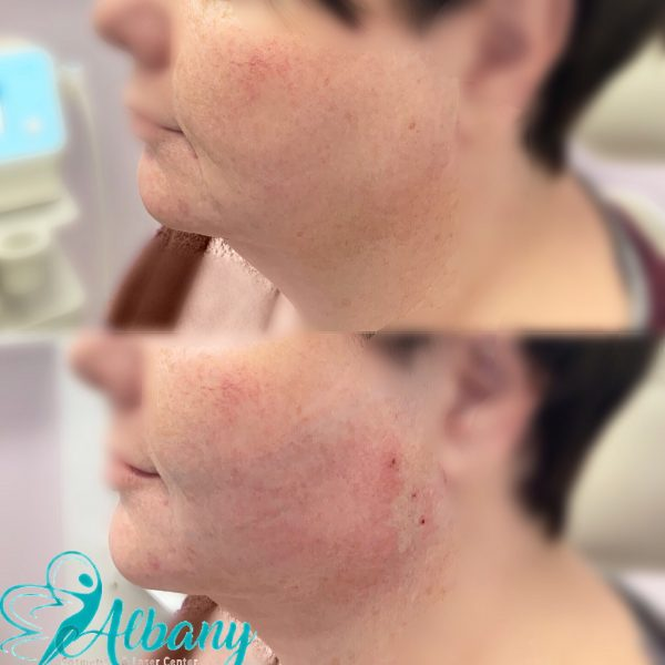 double chin correction with threads in Edmonton