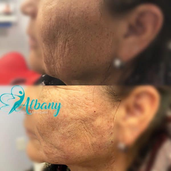Mini facelift with fillers in Edmonton