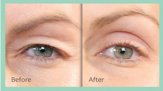 non-surgical eyebrow lift in Edmonton