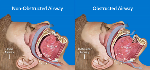 snoring-anatomical-features