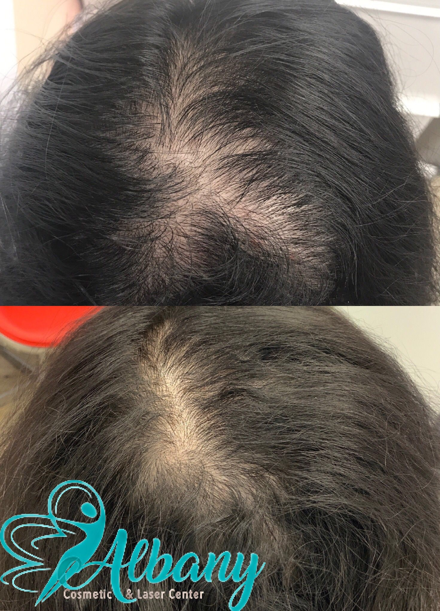 Hair loss treatment in Edmonton