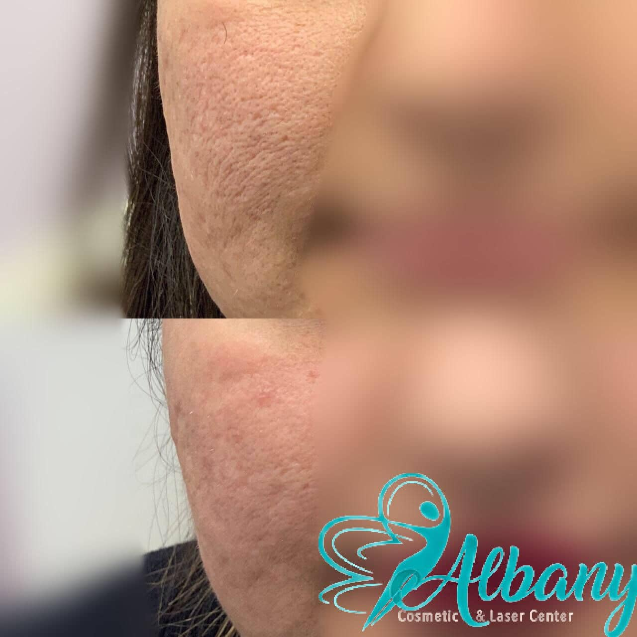 enlarged pores correction with laser