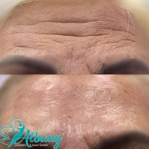 Botox for forehead