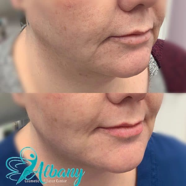 midfacial augmentation with Juvederm
