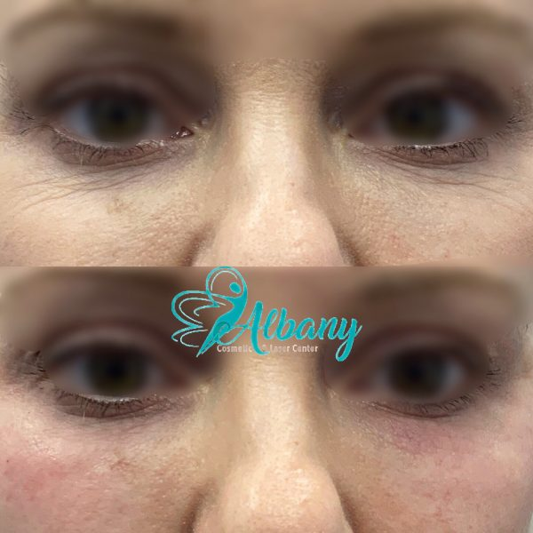 Under eye fillers Juvederm volbella