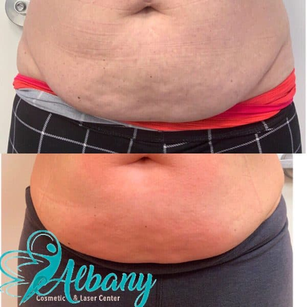 coolsculpting results in Edmonton