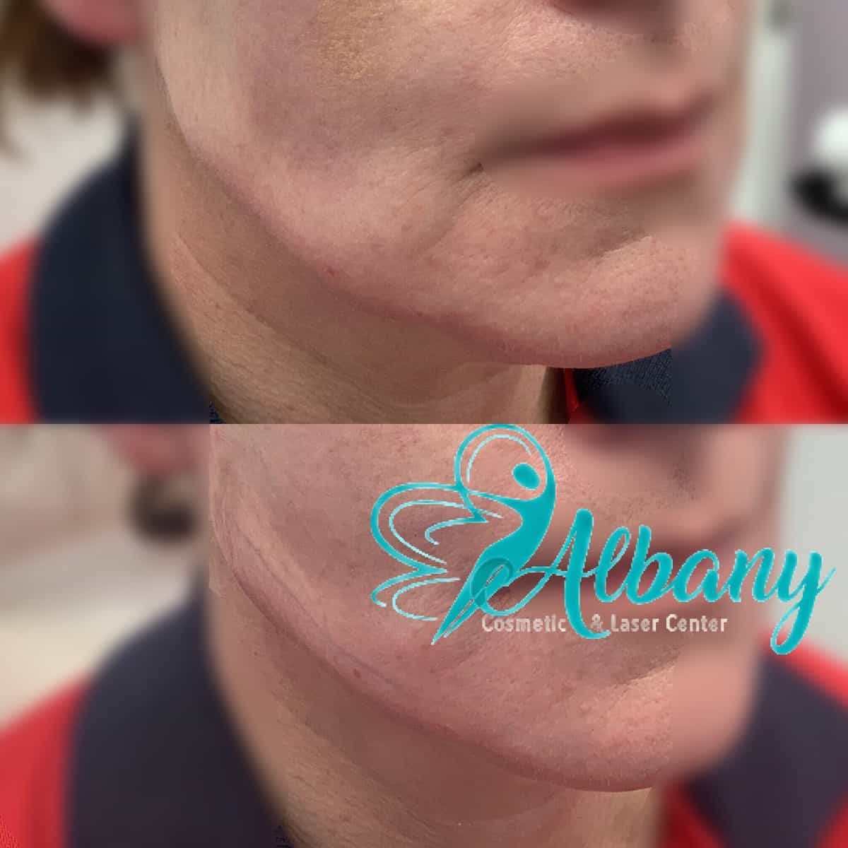 Jawline contouring with threads