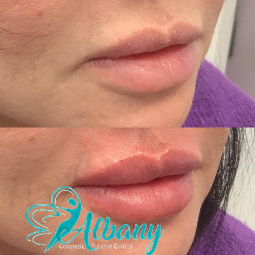lip fillers in Edmonton