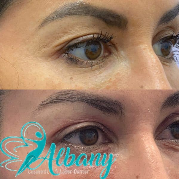 upper eyelid tightening with laser