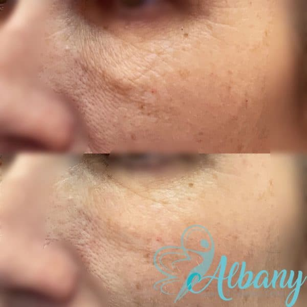 Under-eye wrinkles correction with laser