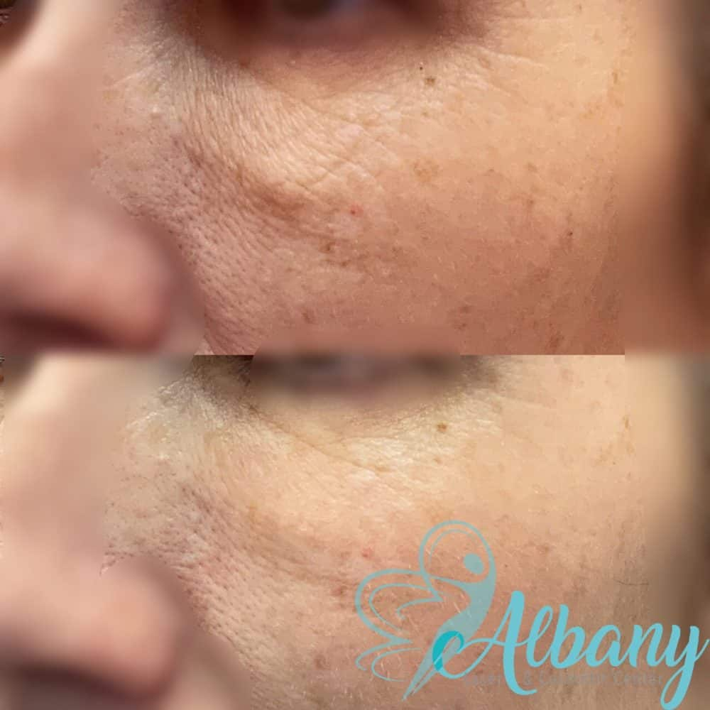Under-eye wrinkles correction with laser