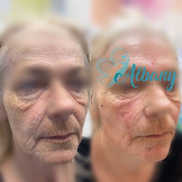 face fillers face lift