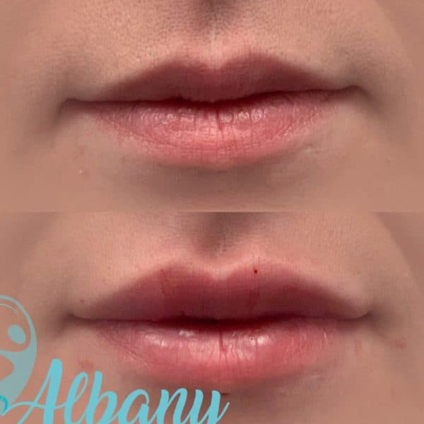 Lip fillers Restylane Edmonton