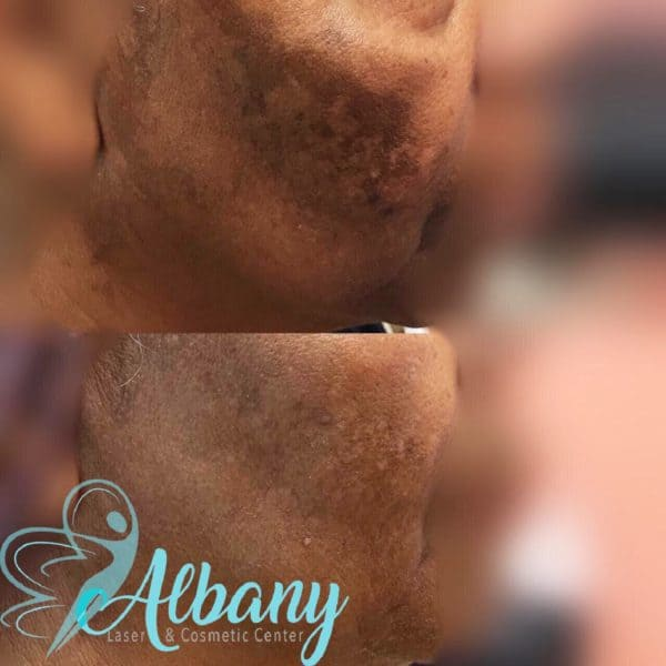 Melasma treatment Edmonton