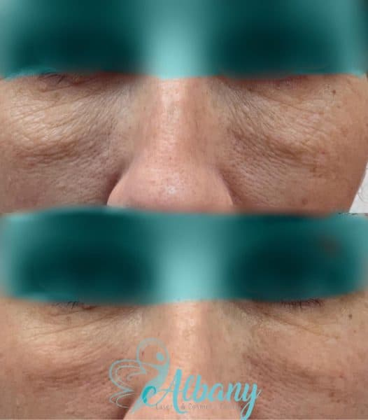 Under eye wrinkles correction laser
