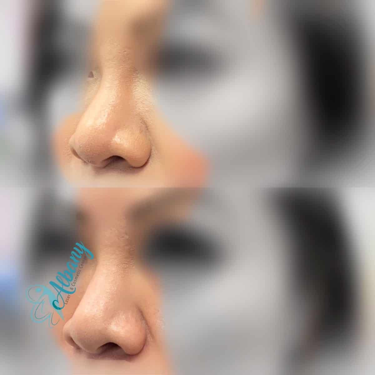 rhinoplasty with fillers by Dr. Kamal Alhallak (Ph.D.)