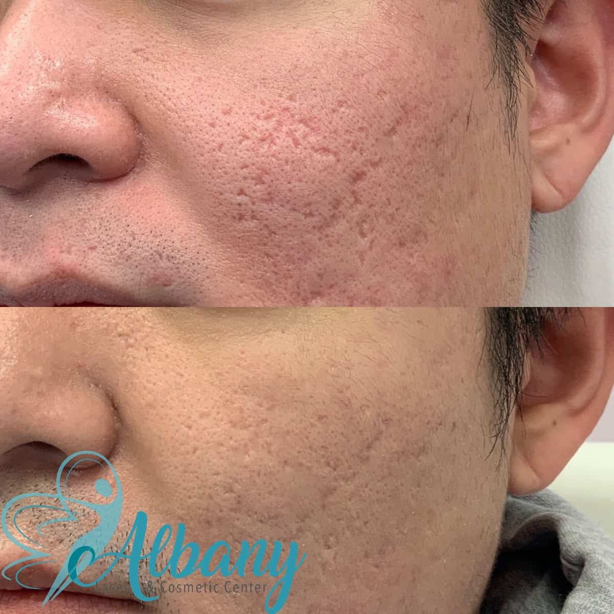 Acne Scars treatment with Fractora Microneedling