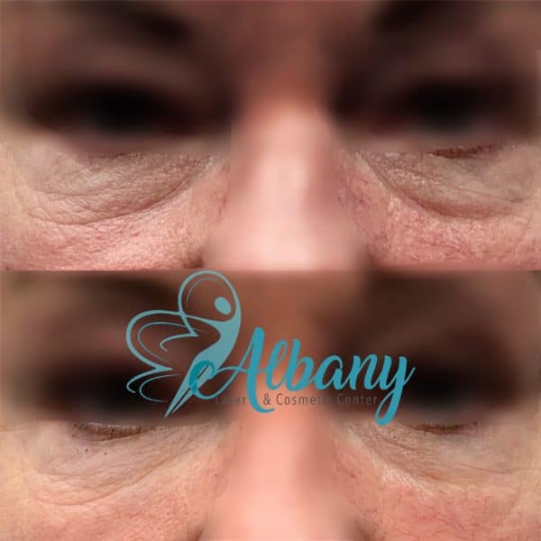 under-eye filler under-eye bags Dr. Kamal Alhallak (Ph.D.)