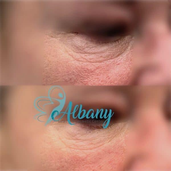 under-eye filler under-eye bags Dr. Kamal Alhallak (Ph.D.)