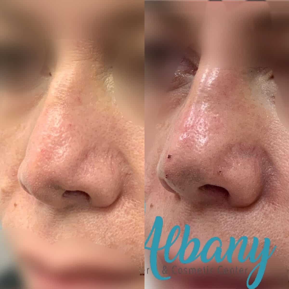 Nose job fillers Edmonton