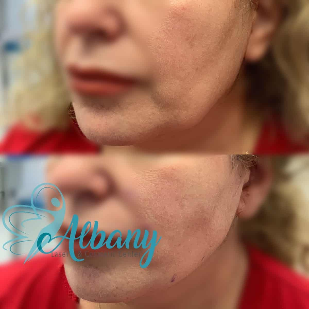 Thread facelift Edmonton