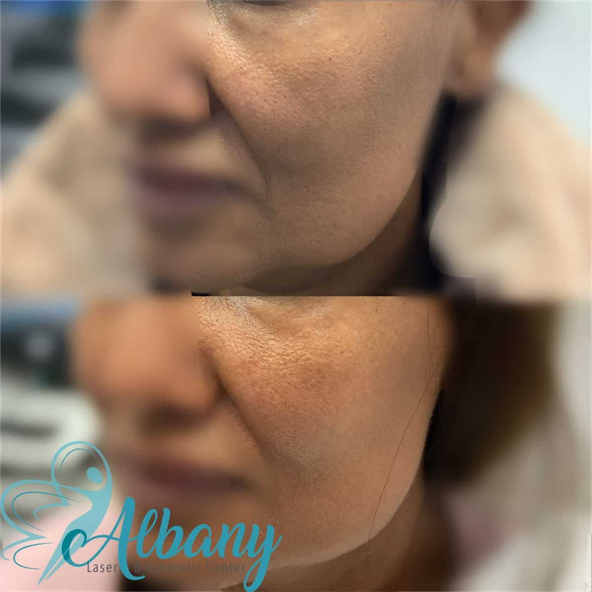 Mid-face augmentation
