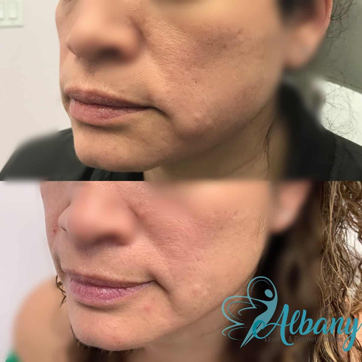 face rejuvenation Edmonton