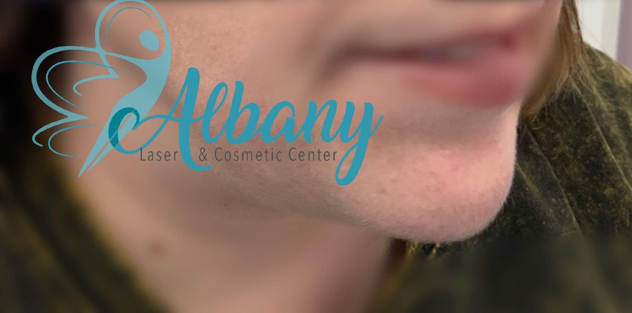 After Chin fillers injection