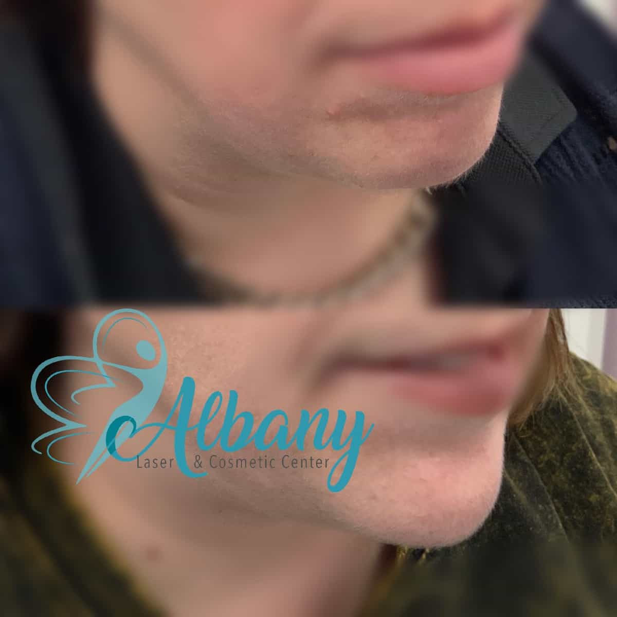 chin augmentation Edmonton