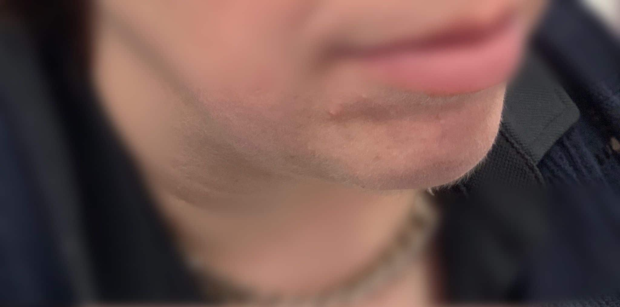 Before Chin fillers injection