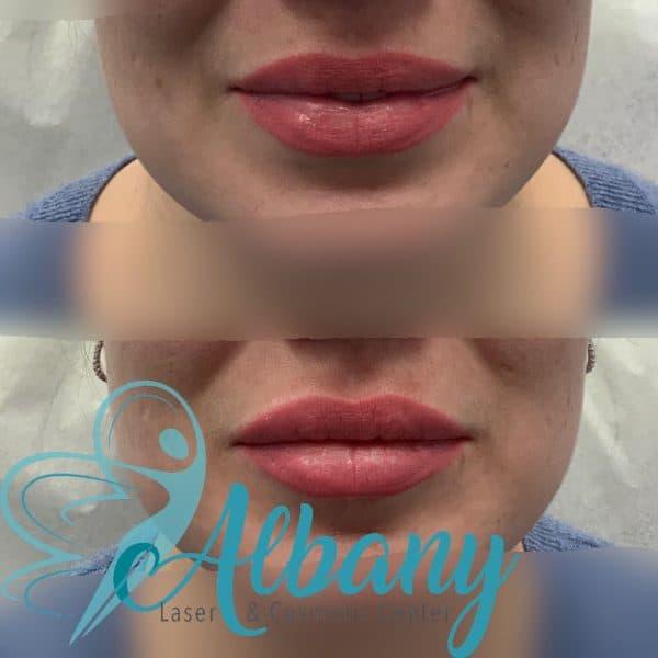 Lip fillers injection Edmonton