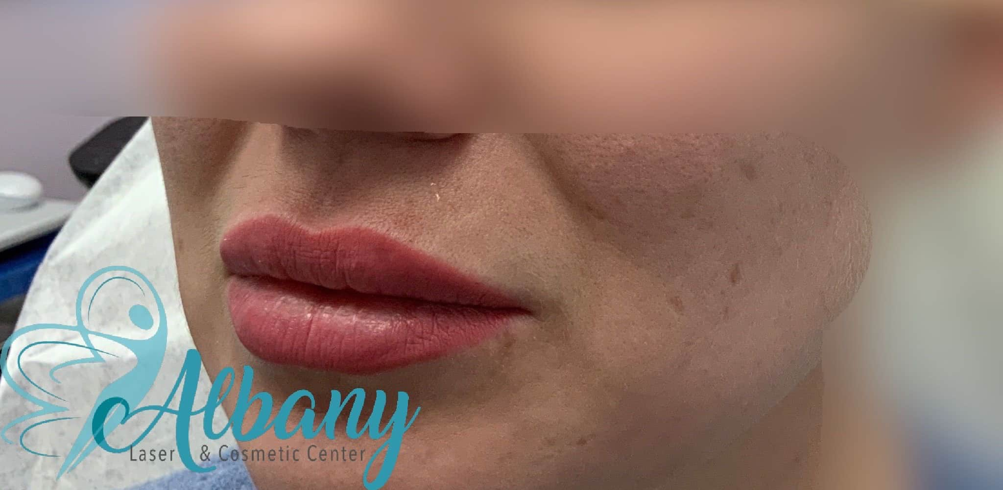 after lip fillers injection Edmonton