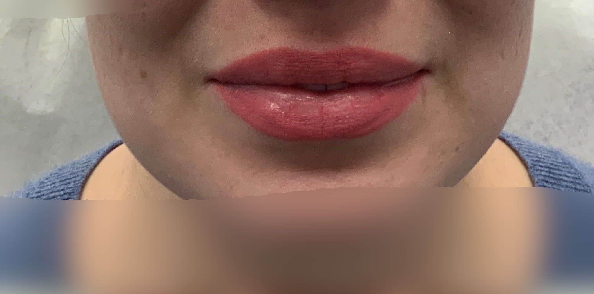 Before lip fillers injection Edmonton