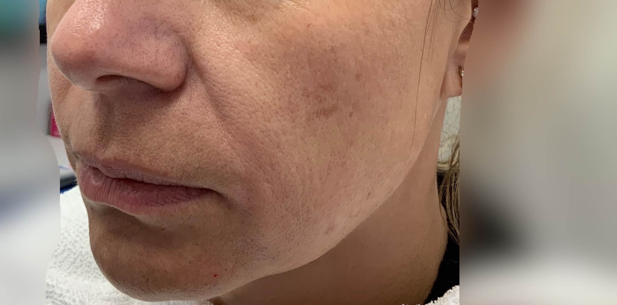 before nonsurgical facelift