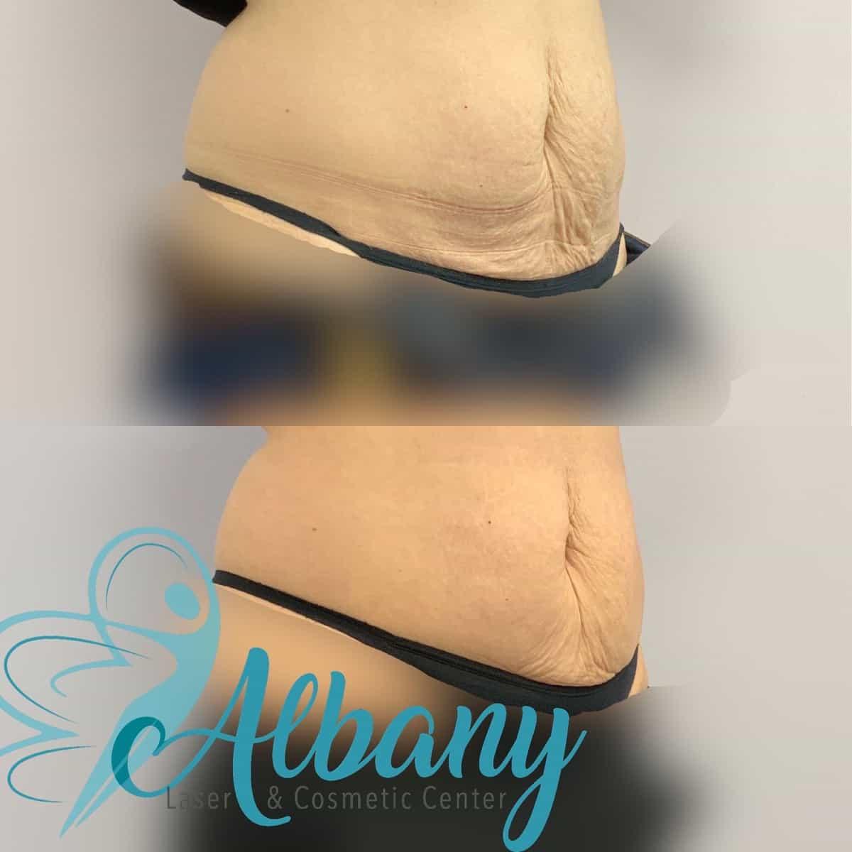 non surgical tummy tuck edmonton