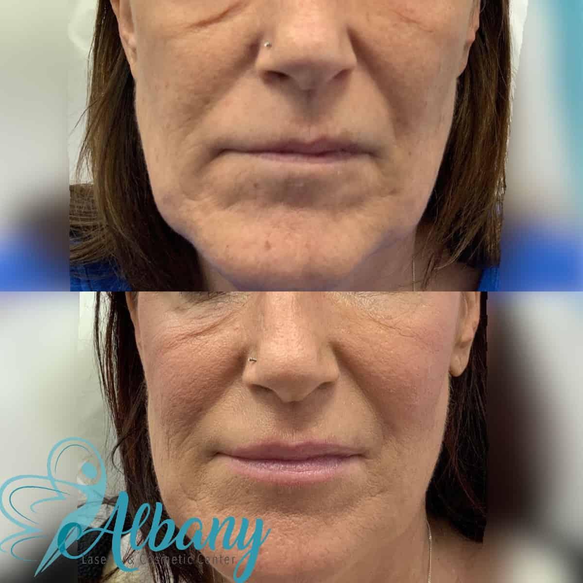 fillter Botox edmonton