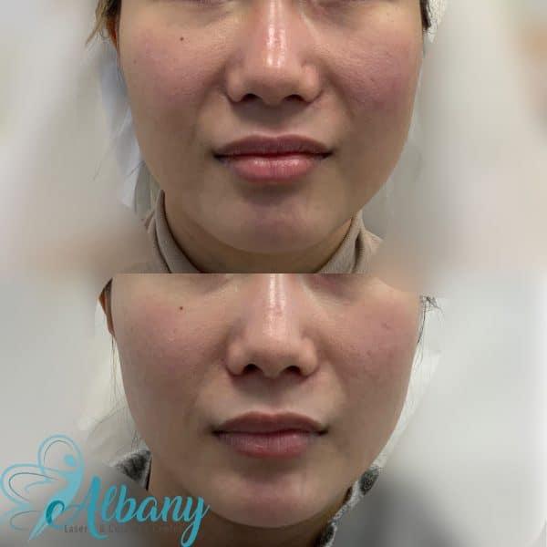 Fotona laser facelift