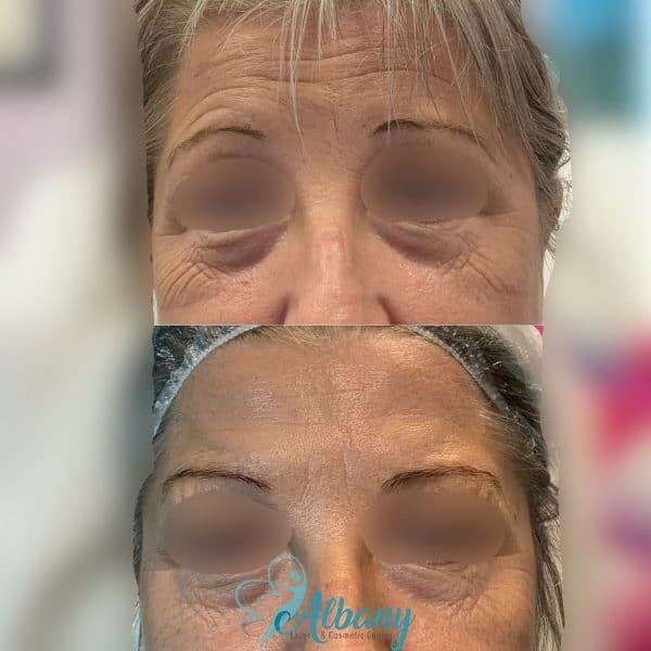 Botox treatment