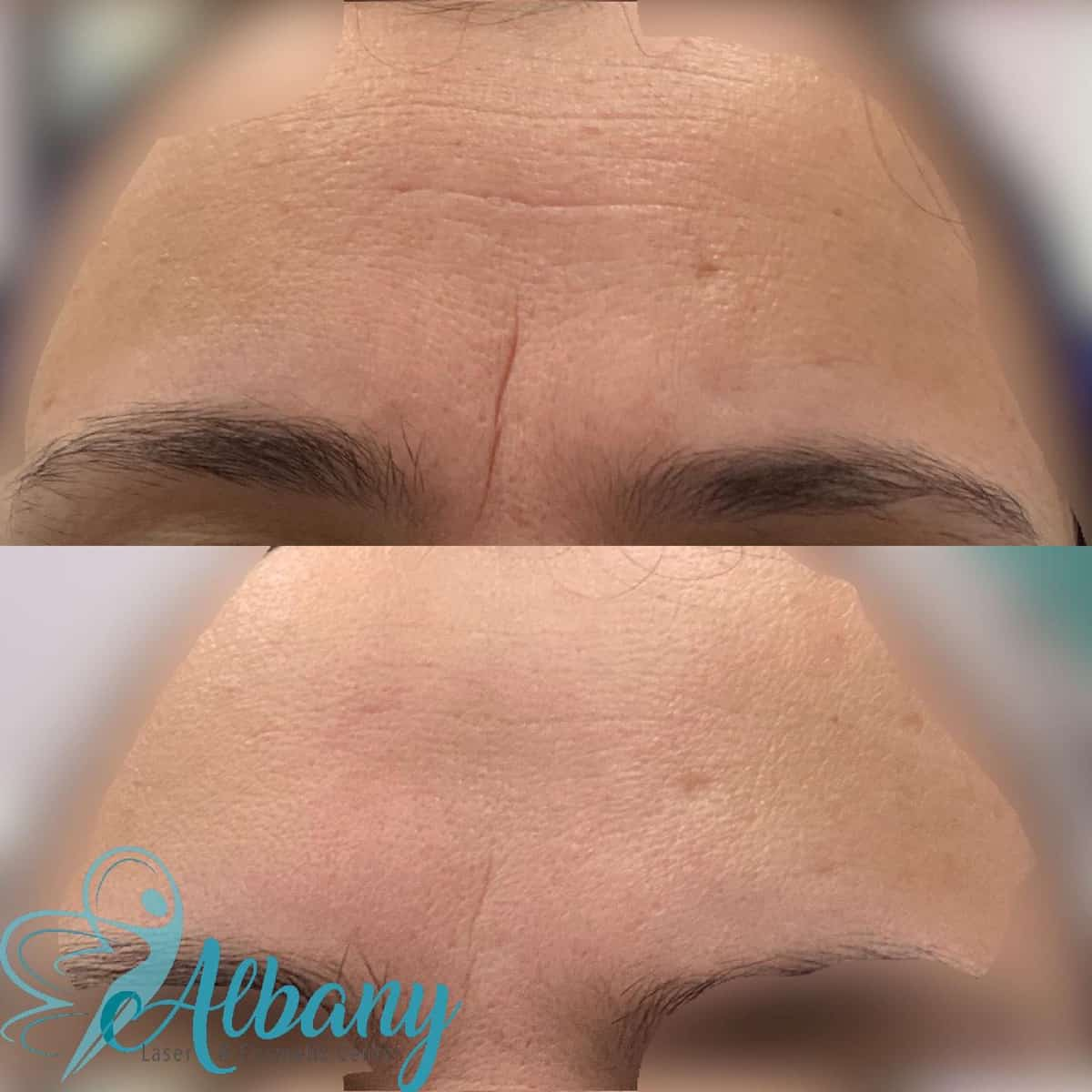 Botox for the frownline